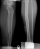 Leg Fracture Picture Image