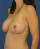 Breast Image