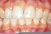 Unhealthy Lower Gums Image