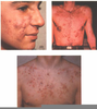 Gluten Allergy Acne Image