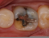 Tooth Fracture Molar Image
