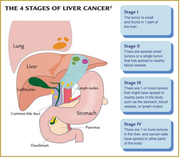Liver Cancer Stages Free Images At Clker Com Vector