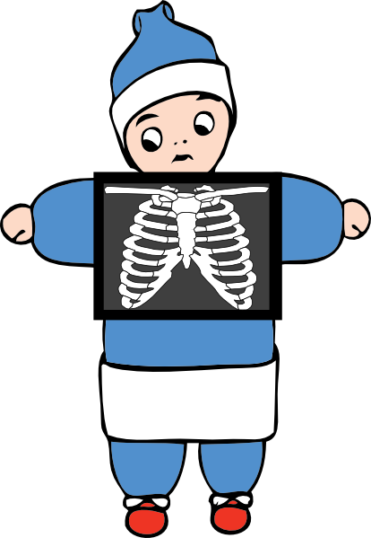 x ray clipart free - photo #1