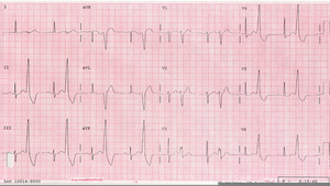 premature ventricular contractions free images at clker com