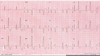 Premature Ventricular Contractions Image