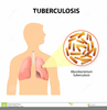 Tuberculosis Clipart Image