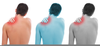 Shoulder Injury Clipart Image
