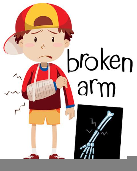 broken bone clipart free images at clker com vector clip art rh clker com  broken collar bone clipart