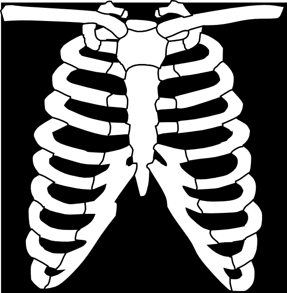x ray clipart free - photo #7