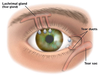 Blocked Tear Duct Image