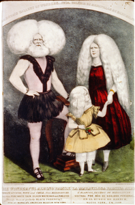 The Wonderful Albino Family / La Maravilosa Familia Albi [trimmed] Image