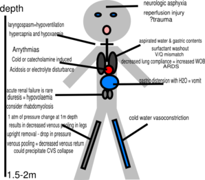 Stick Figure Pathophysiology Of Drowning Clip Art