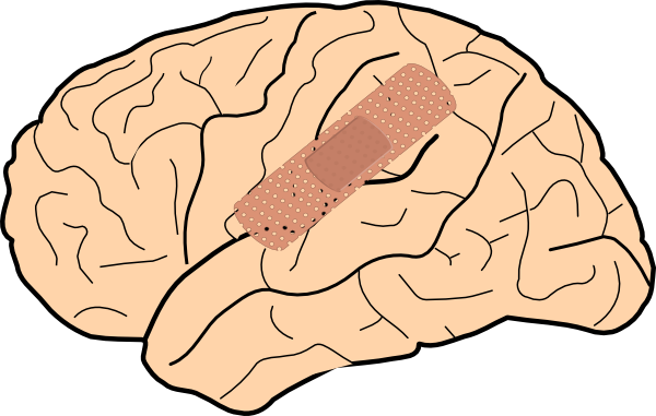 Brain Injury Clip Art at Clker.com - vector clip art online, royalty free & public domain