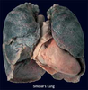 Smokers Lung Picture Image