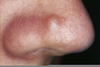Zits On Nose Image