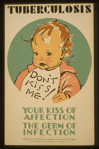 Tuberculosis Don T Kiss Me! : Your Kiss Of Affection - The Germ Of Infection / Jd. Image