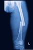 Transverse Fracture Image