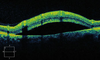 Retinal Detachment Oct Image