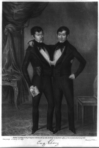 Eng-chang Conjoined Twins Image