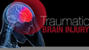 Traumatic Brain Injury Clipart Image