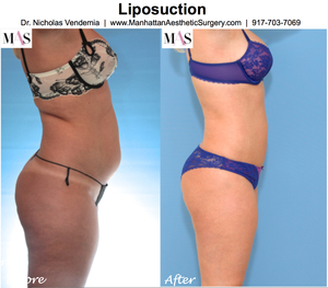 Thigh Liposuction Scars | Free Images at Clker com - vector