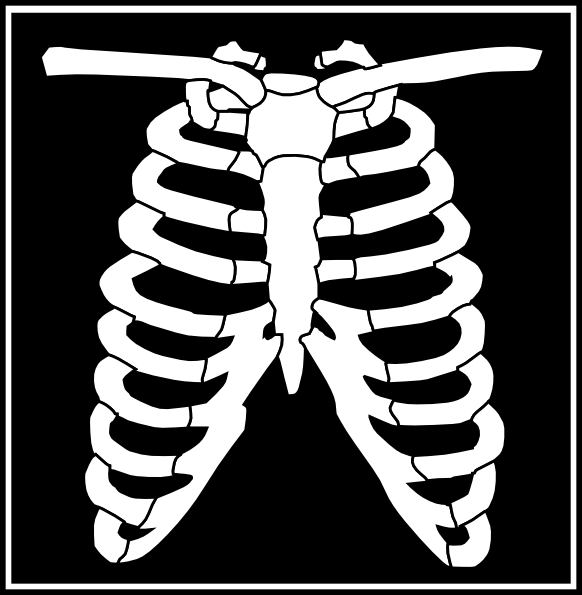 X Ray Line Drawing : Black white xray clip art at clker vector