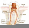 Toothache Cavity Image