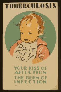 Tuberculosis Don T Kiss Me! : Your Kiss Of Affection - The Germ Of Infection / Jd. Clip Art